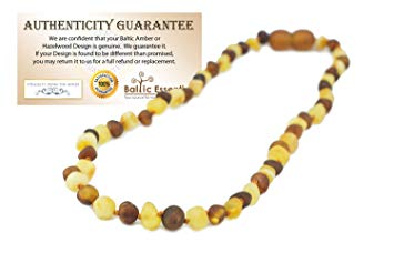 Baltic Amber Teething Necklace Babies Milk Cognac White Brown Baby Infant Toddlers Polished...